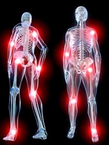 skeleton-pain-copy