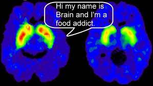 brainaddict